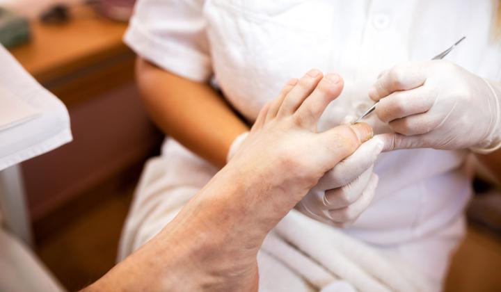 Przycięcie i oszlifowanie paznokci u stóp