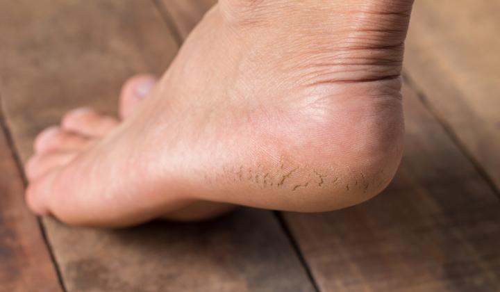 Usuwanie rozpadlin na stopach