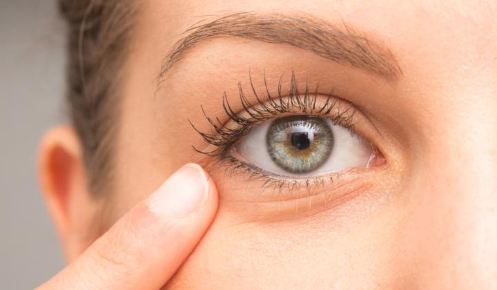Plastyka powieki dolnej - zabieg okuloplastyczny