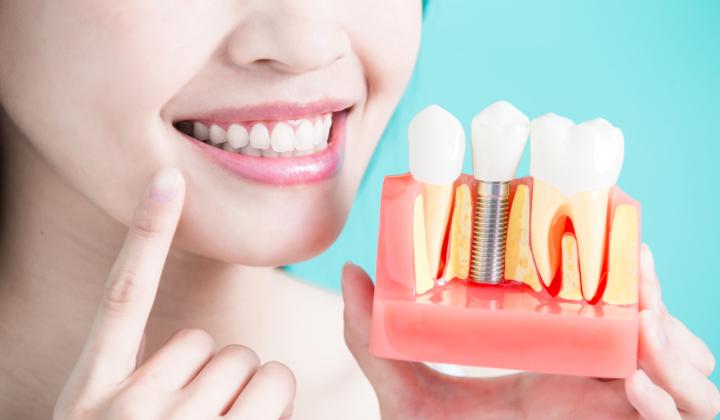 Założenie korony zębowej