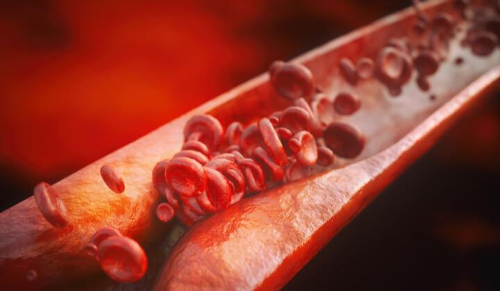 Diagnostyka miażdżycy - panel badań krwi