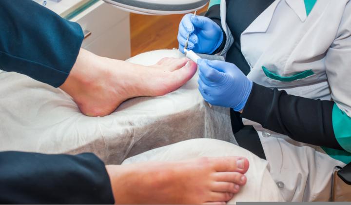 Badanie mykologiczne/bakteriologiczne stóp