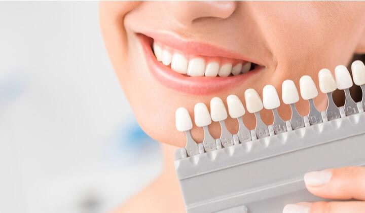 Wybielanie gabinetowe zębów (jeden łuk)