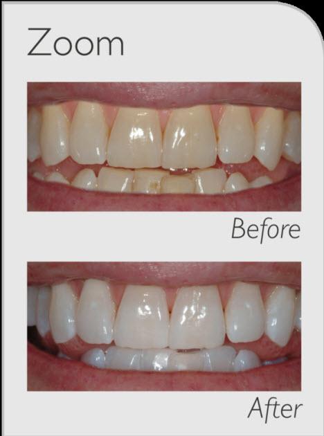 System Wybielania Zęb 243 W Philips Zoom Agdlab Pl