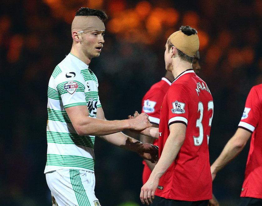 Paddy McNair to prawdziwy twardziel! Grał ze szwami, szacunek!