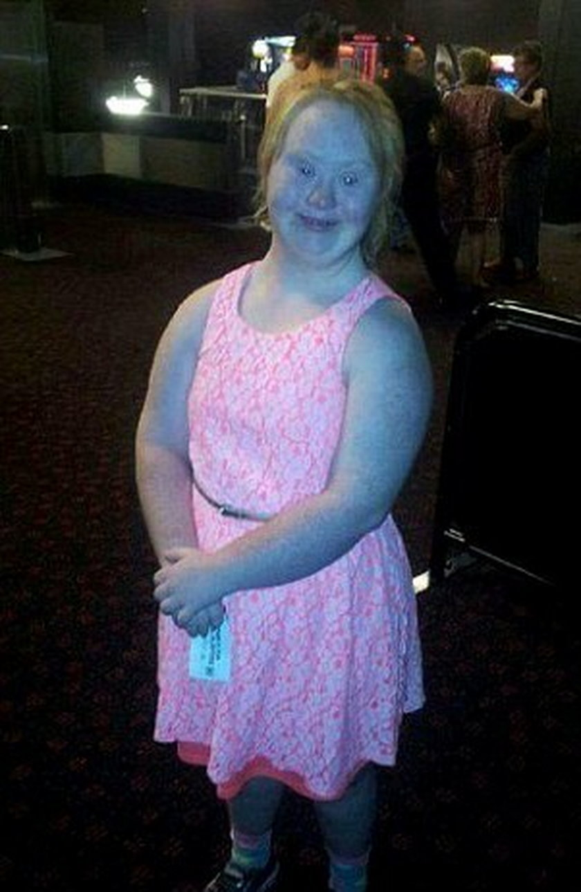18-latka z zespołem Downa została modelką