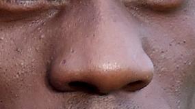 QUIZ: Czy rozpoznasz piłkarza po jego nosie?