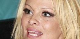 Anderson: Botoks mnie przeraża