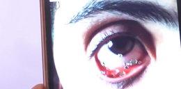 Mówiła, że płacze kryształami. Lekarze powiedzieli, co jej dolega