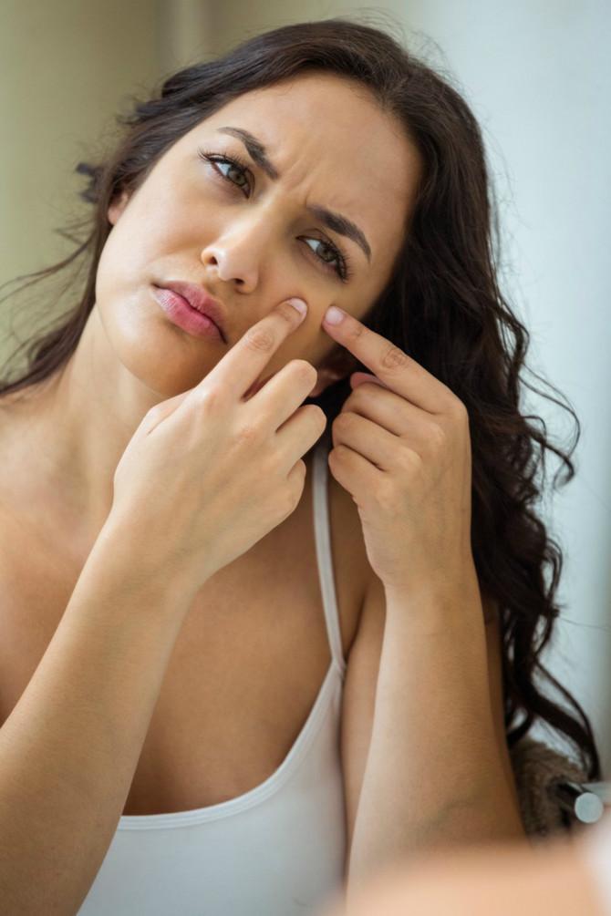 Akne umeju da budu prvi signal,a  često im žene ne pridaju značaj