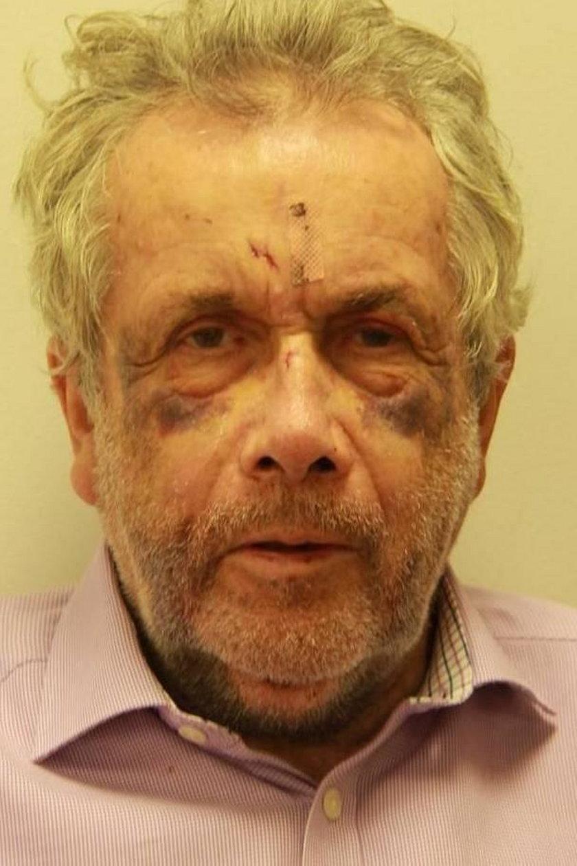 Znany dziennikarz Martin Bell przeszedł poważną operację