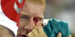 Polski piłkarz stracił oko. Specjalne okulary chronią drugie