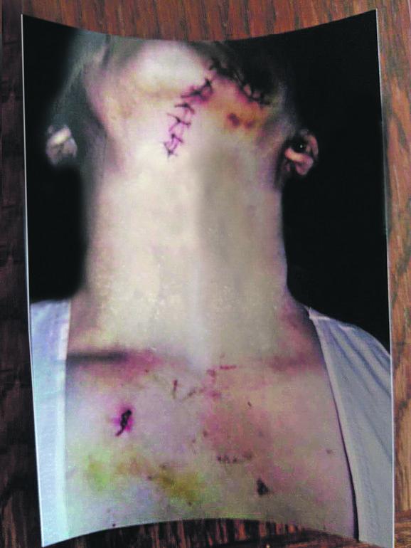Nesrećnu ženu muž je 11 puta nožem pred decom sekao po telu i vratu,  tvrdeći da je bio pod dejstvom alkohola