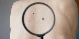 Uszy i dolna warga - tam też atakuje rak skóry. Wiedziałaś o tym? Rozpoznaj go zawczasu!