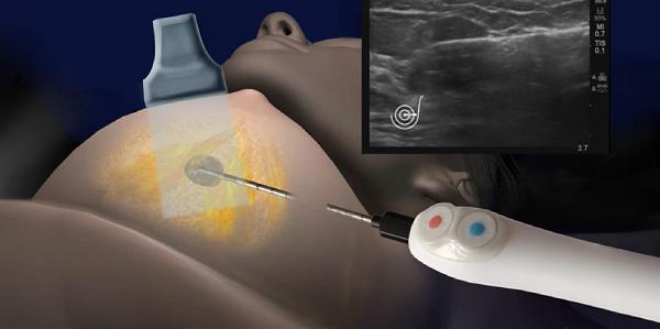 A mell papillómáinak eltávolítása, Mikor szükséges az emlőeltávolító műtét (masztektómia)?