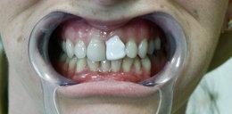 Przytwierdziła zwykłym klejem 11 zębów! Zobacz, jak to się skończyło!