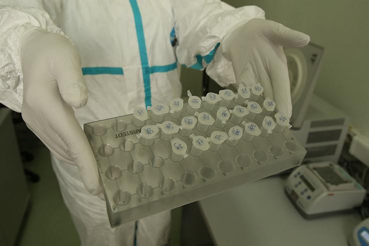 virus-korona-labaratorija-institut-za-javno-zdravstvo-04-foto-S-PASALIC