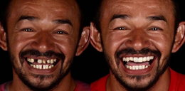 Dentysta leczy za darmo biednych. Tak zmienił ich uśmiechy