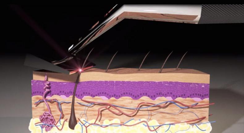 Animation showing how the Skarp Laser Razor works