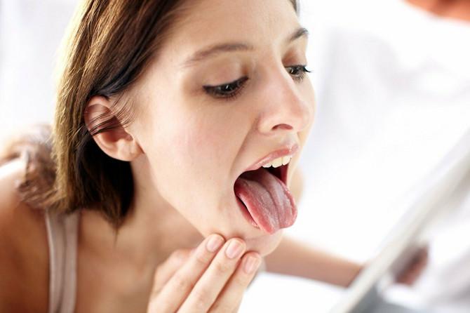 Obavezno pregledajte jezik