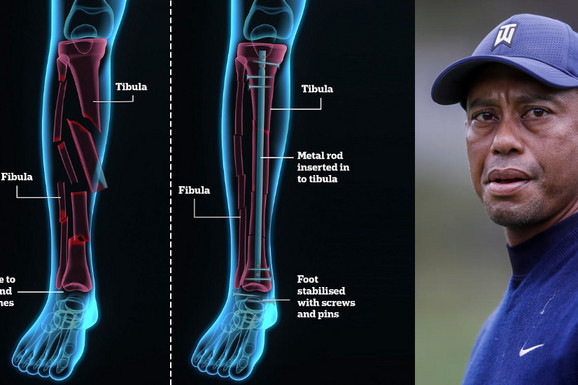 Prikaz noge Tajgera Vudsa - JEZIV! Sve smrskano, povratak golfu pod velikim znakom pitanja /FOTO/
