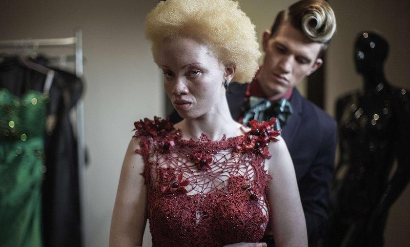 Albinoska została modelką
