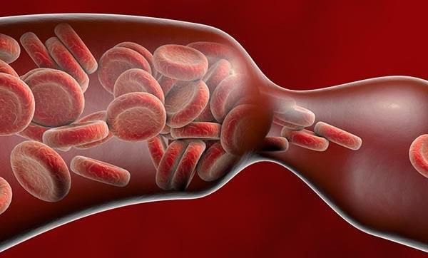 visszér szív- és érrendszeri betegségek esetén torna a visszér képekkel