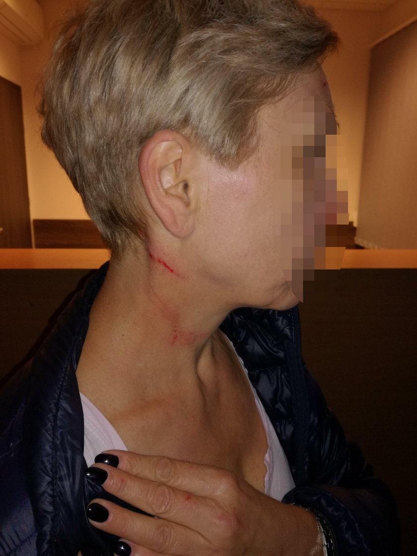 Strażniczka miejska zbluzgała i pobiła niewinną kobietę