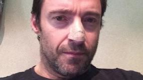 Hugh Jackman ujawnił, że zmagał się z rakiem skóry