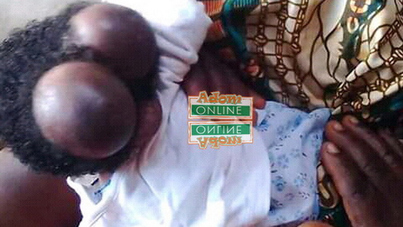 20-year-old woman gives birth to baby with two heads at Swedru