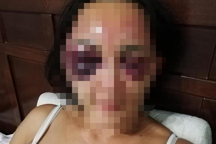 Nesrećnoj ženi suprug je gotovo promenio lični opis