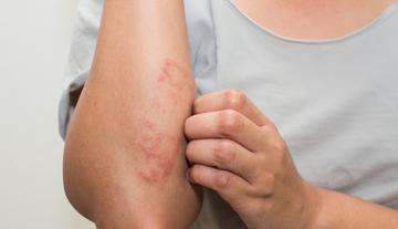 Bőrbetegségek télen | DRHAZI
