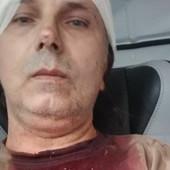 """STRIC ALEKSANDRE SUBOTIĆ: """"NAPADNUT SAM"""" Nedavno mu je u dvorište uleteo eksplozivni metak, a sada kaže da su ga TUKLI ŠIPKOM"""