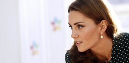 Duża blizna na głowie księżnej Kate. Co się stało?
