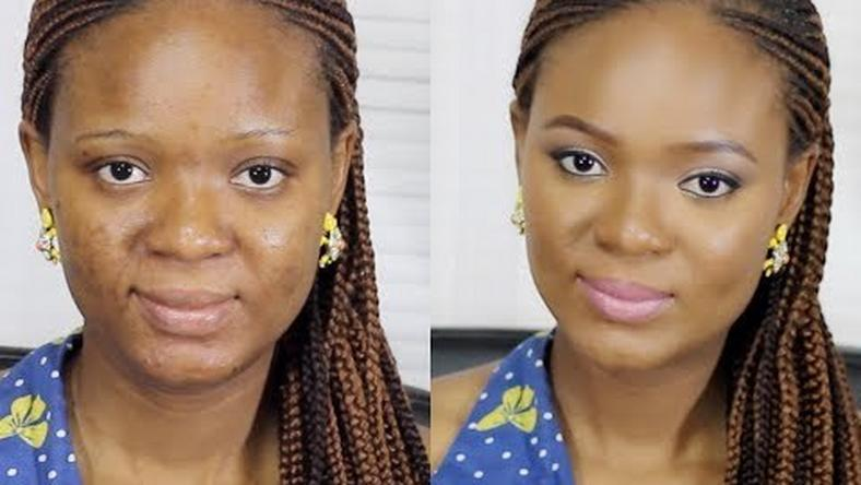 A full coverage foundation perfectly masks blemishes