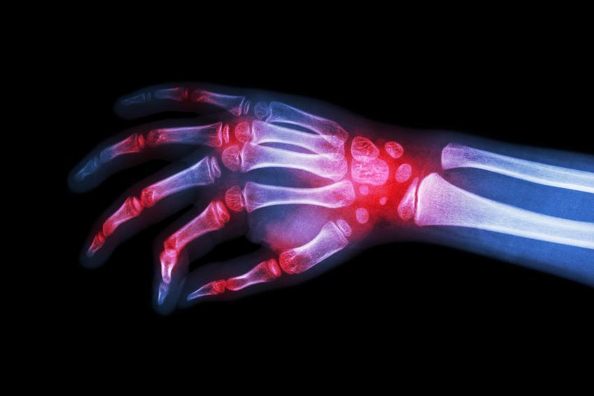 ízületi pótlás artritisz esetén)