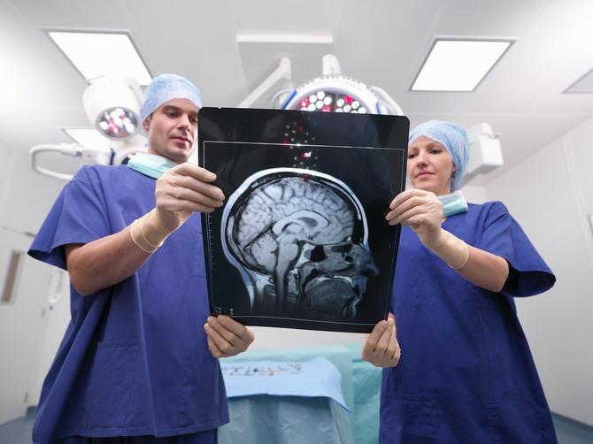 Ovih osam neverovatnih činjenica o mozgu sigurno niste znali