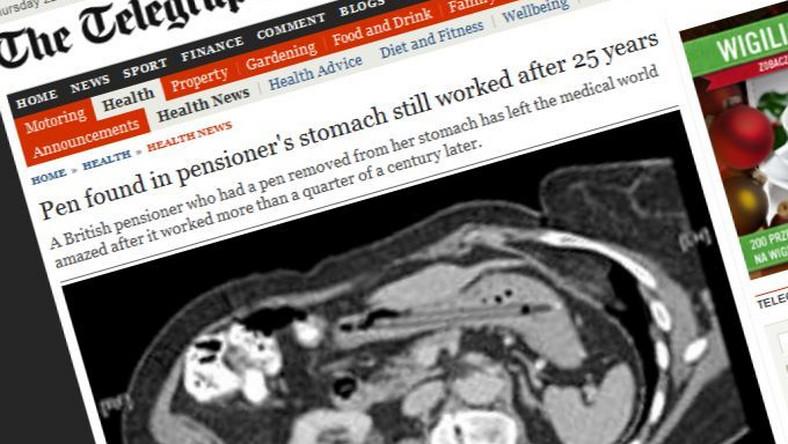 Brytyjka 25 lat chodziła z długopisem w żołądku