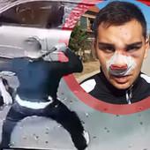 UNAKAŽENO LICE MLADIĆA Ovo je sin muškarca koji je brutalno pretukao sugrađanina u Vranju