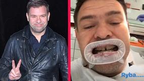 Sensacja dnia: Karolak zdjął aparat z zębów! Teraz Ludwik Boski ma uśmiech boski?