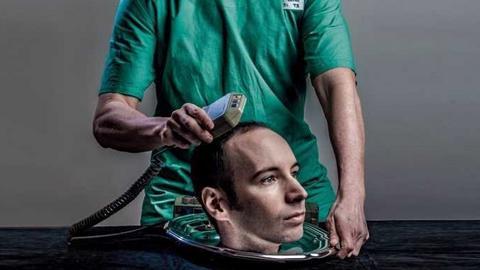 Sergio Canavero chce przeszczepić ludzką głowę już w 2017 roku