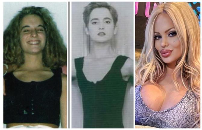 Sabrina je imala preko 50 plastičnih operacija