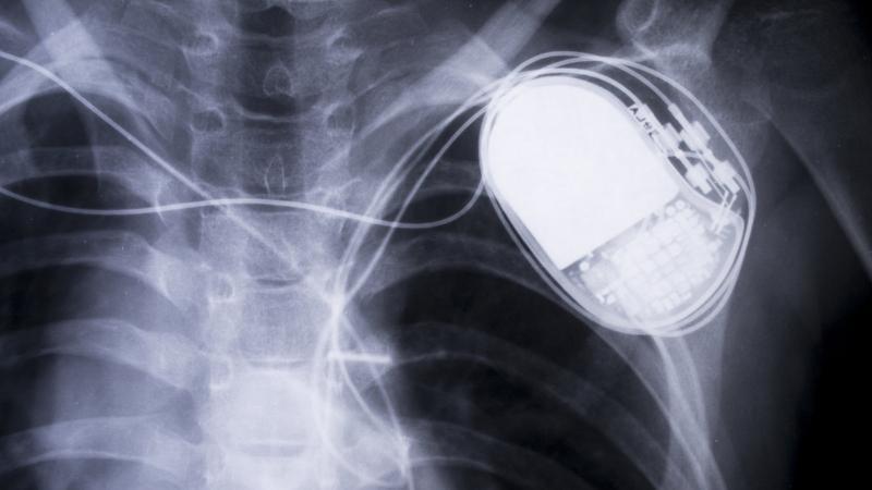 Rozruszniki serca podatne na ataki hakerskie? Jest gorzej niż ktokolwiek zakładał