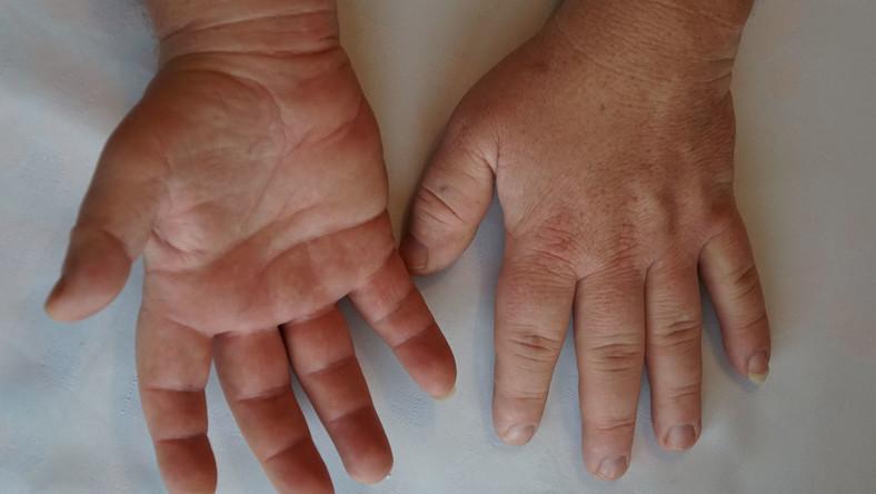 Akromegalia, dłonie