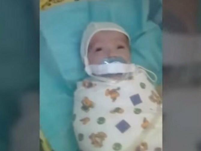 UŽAS koji slama srce: Bebi od 12 nedelja zalepili cuclu za usta