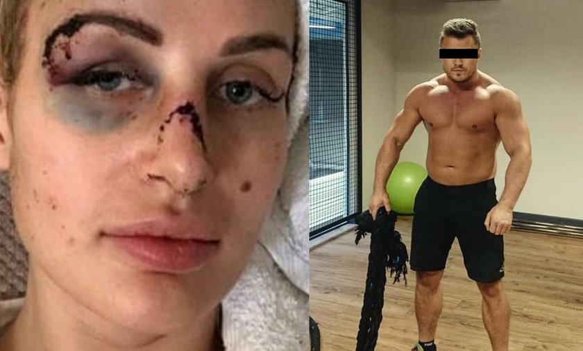 Trener personalny zmasakrował twarz kobiecieTrener personalny zmasakrował twarz kobiecie
