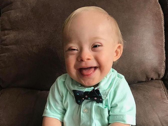 Objavila je OVU fotografiju svog sinčića sa Daunovim sindromom: Usledio je RASPLET događaja kakav nije mogla ni da zamisli