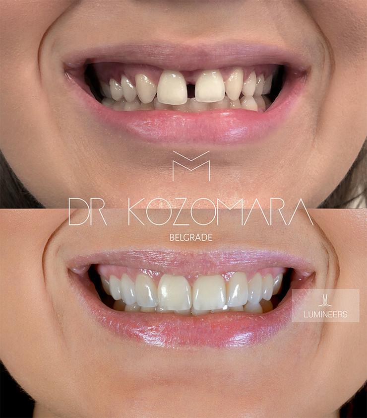 Luminiri (org.lumineers) se mogu koristiti da se nadoknadi polomljen zub, da promeni boju...