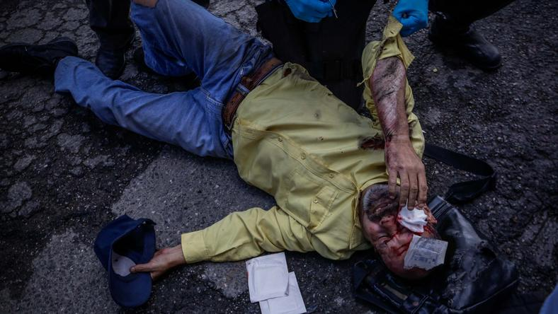VENEZUELA CRISIS (Opposition begins the first day of great protest in Venezuela)