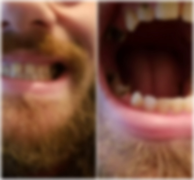 Kako biste se proveli da ne perete zube?
